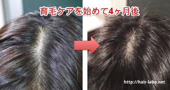 髪のボリューム増やす