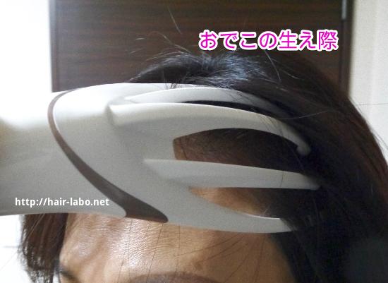頭皮マッサージ 電動